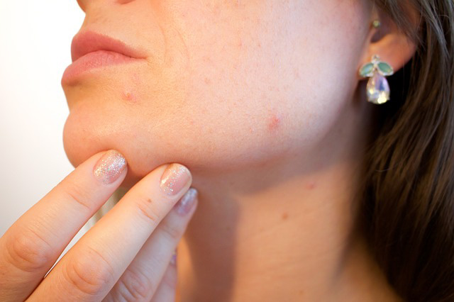 CBD Oil for Acne: What You Need to Know