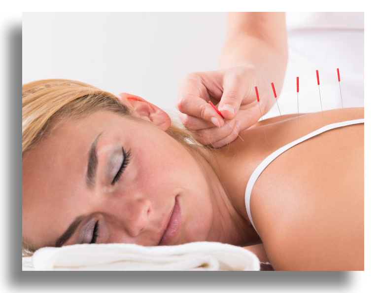 acupuncture02png